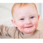 Dermatite atopica dall'infanzia all'età adulta: la natura ci aiuta.