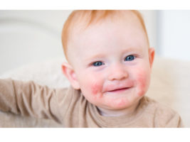 dermatite atopica bambino