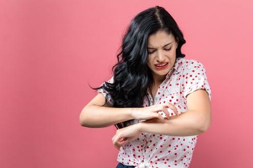 L'orticaria cronica spontanea (CSU): quando pomfi e prurito non danno tregua