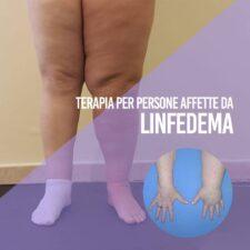 linfedema 1